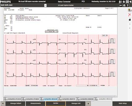 PIIC iX A: 12-lead ECG Capture Review